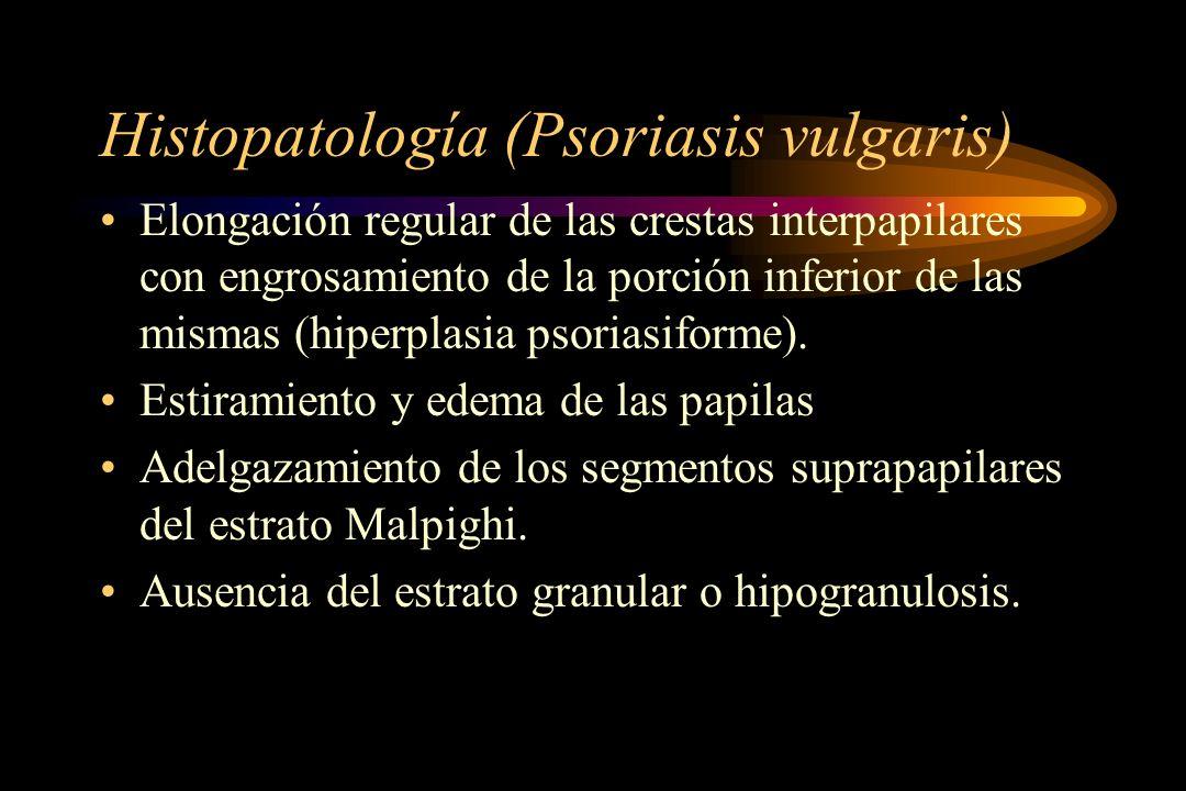 Histipatologia (Psoriasis vulgaris) Paraqueratosis Microabscesos de Munro (en áreas paraquerratósicas) Pústula espongiforme de Kogoj pequeña Capilares papilares dilatados Infiltrado inflamatorio perivascular linfohistiocitario con escasos eosinófilos y plasmocitos