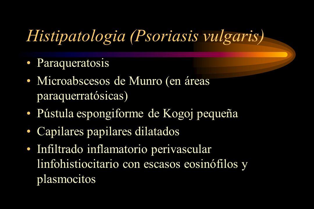 Histipatologia (Psoriasis vulgaris) Paraqueratosis Microabscesos de Munro (en áreas paraquerratósicas) Pústula espongiforme de Kogoj pequeña Capilares