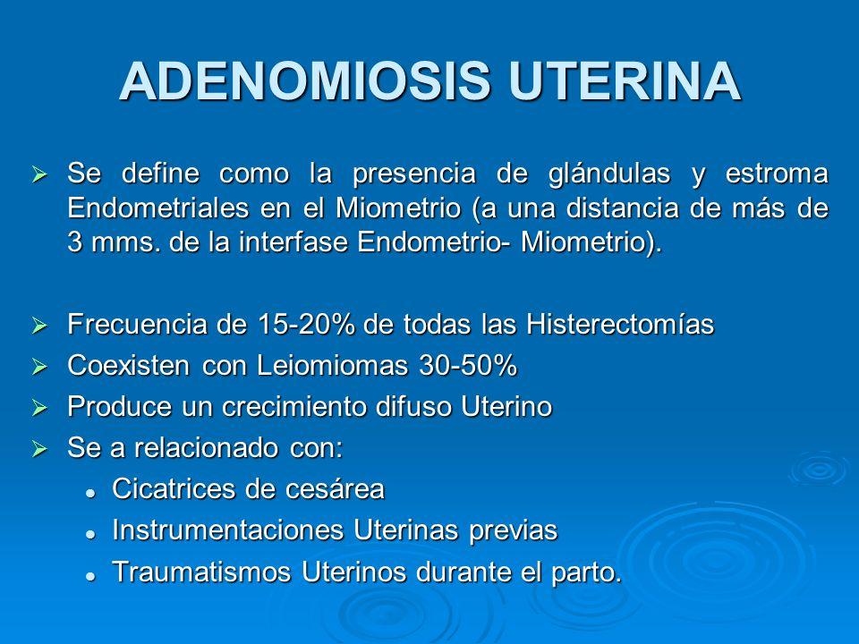 ADENOMIOSIS UTERINA Se define como la presencia de glándulas y estroma Endometriales en el Miometrio (a una distancia de más de 3 mms. de la interfase