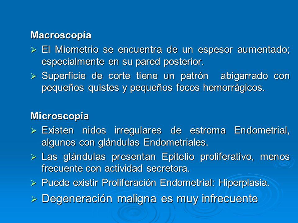 Macroscopía El Miometrio se encuentra de un espesor aumentado; especialmente en su pared posterior. El Miometrio se encuentra de un espesor aumentado;