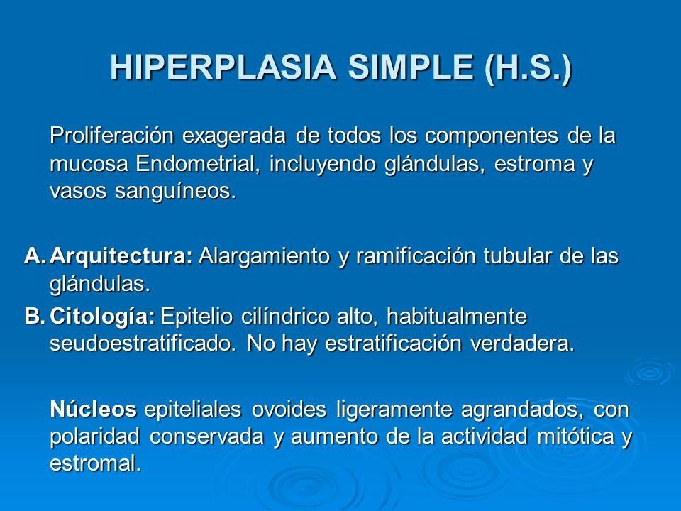 HIPERPLASIA SIMPLE (H.S.) Proliferación exagerada de todos los componentes de la mucosa Endometrial, incluyendo glándulas, estroma y vasos sanguíneos.