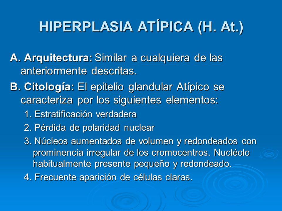 HIPERPLASIA ATÍPICA (H. At.) A. Arquitectura:Similar a cualquiera de las anteriormente descritas. B. Citología: El epitelio glandular Atípico se carac
