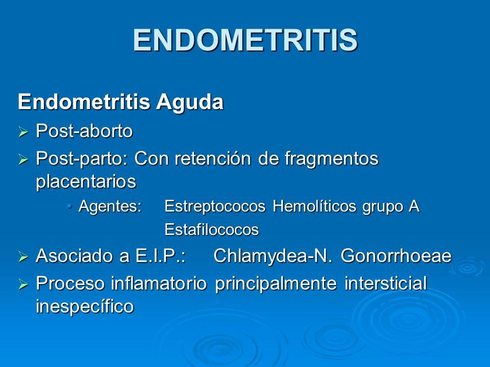 ENDOMETRITIS Endometritis Aguda Post-aborto Post-aborto Post-parto: Con retención de fragmentos placentarios Post-parto: Con retención de fragmentos p