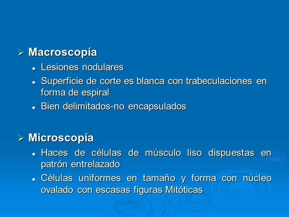 Macroscopía Macroscopía Lesiones nodulares Lesiones nodulares Superficie de corte es blanca con trabeculaciones en forma de espiral Superficie de cort