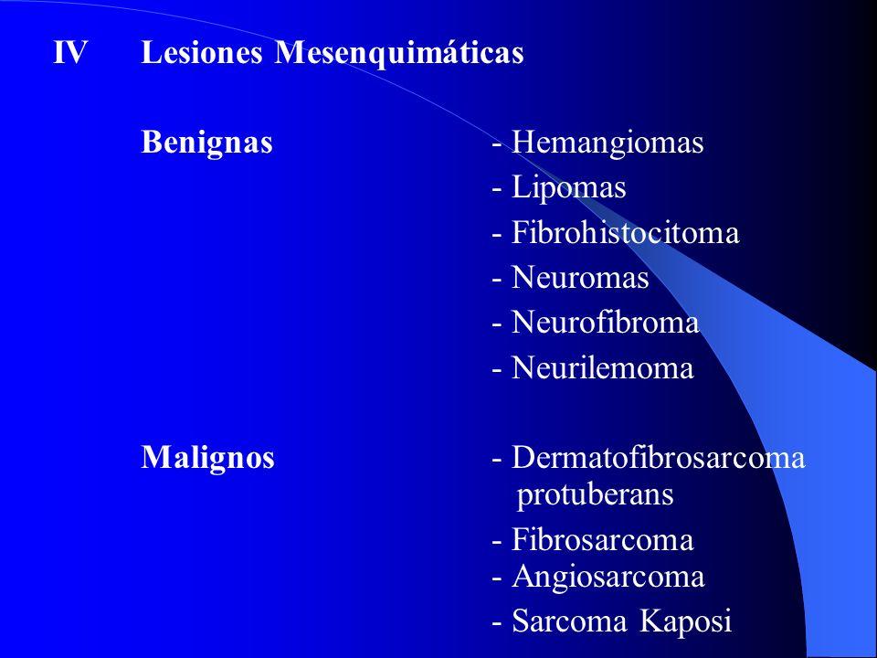 IVLesiones Mesenquimáticas Benignas- Hemangiomas - Lipomas - Fibrohistocitoma - Neuromas - Neurofibroma - Neurilemoma Malignos- Dermatofibrosarcoma pr