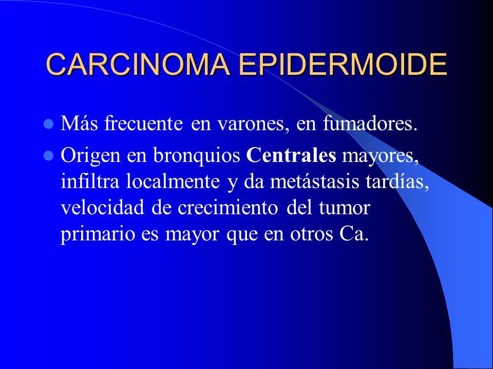 Morfología: Masa bronquial central 75%, (Ca Epidermoide – Ca de Células Pequeñas) Masa periférica 25% (Adenocarcinoma, Ca. Bronquioloalveolar El Ca. p