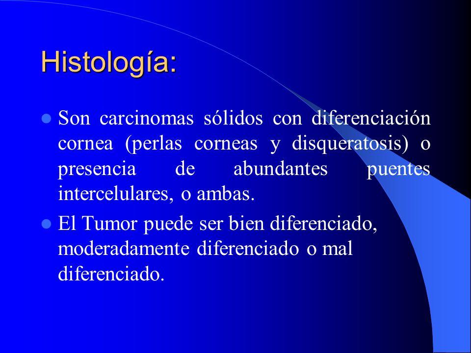 CARCINOMA EPIDERMOIDE Más frecuente en varones, en fumadores. Origen en bronquios Centrales mayores, infiltra localmente y da metástasis tardías, velo
