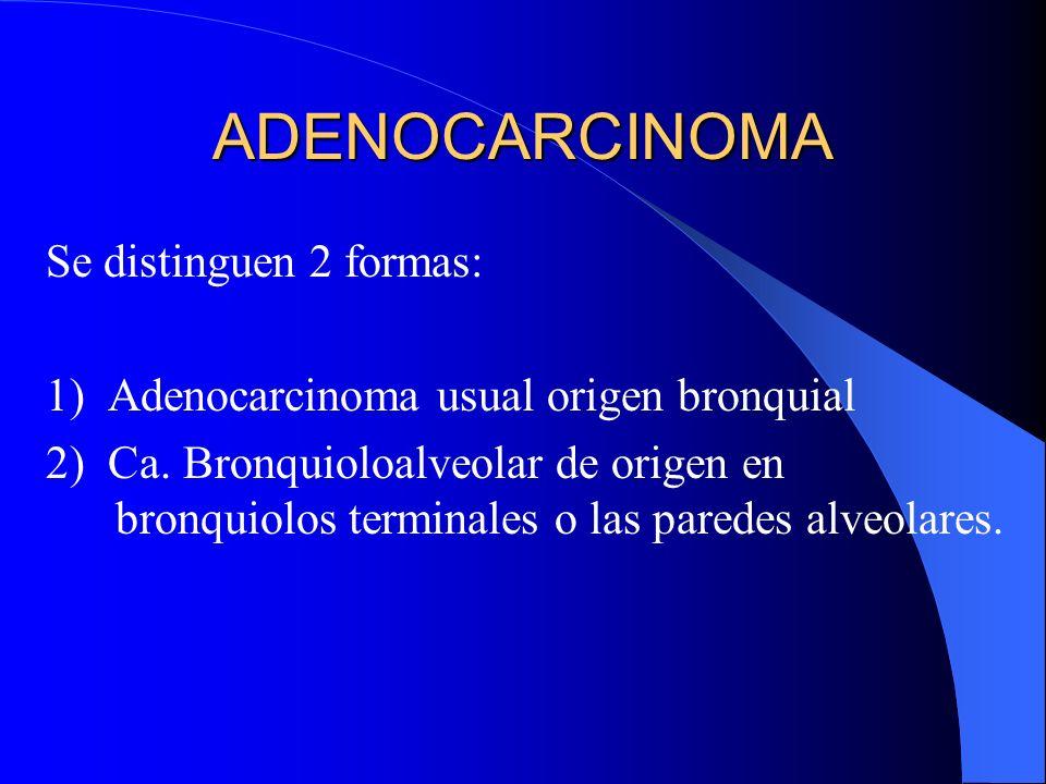 Histología: Son carcinomas sólidos con diferenciación cornea (perlas corneas y disqueratosis) o presencia de abundantes puentes intercelulares, o amba