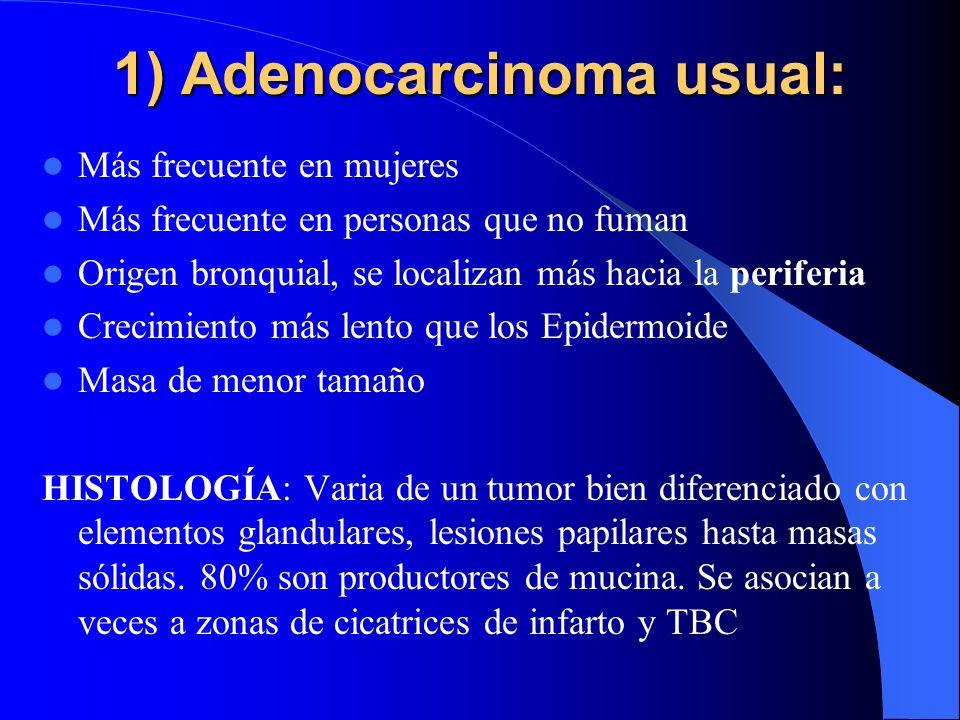 ADENOCARCINOMA Se distinguen 2 formas: 1) Adenocarcinoma usual origen bronquial 2) Ca. Bronquioloalveolar de origen en bronquiolos terminales o las pa