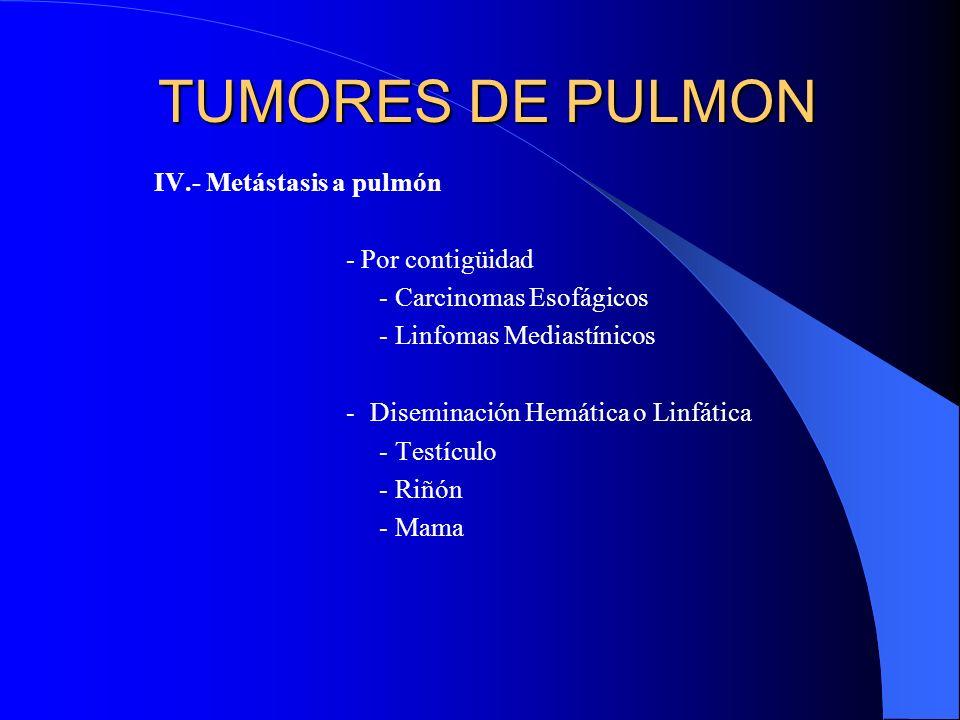 TUMORES DE PULMON I.- Epiteliales (90 - 95%) - Ca Broncogénico II.- neuroendocrinos (5%) - Tumorlets - Carcinoides III.- Mesenquimales (2-5%) - Fibrom
