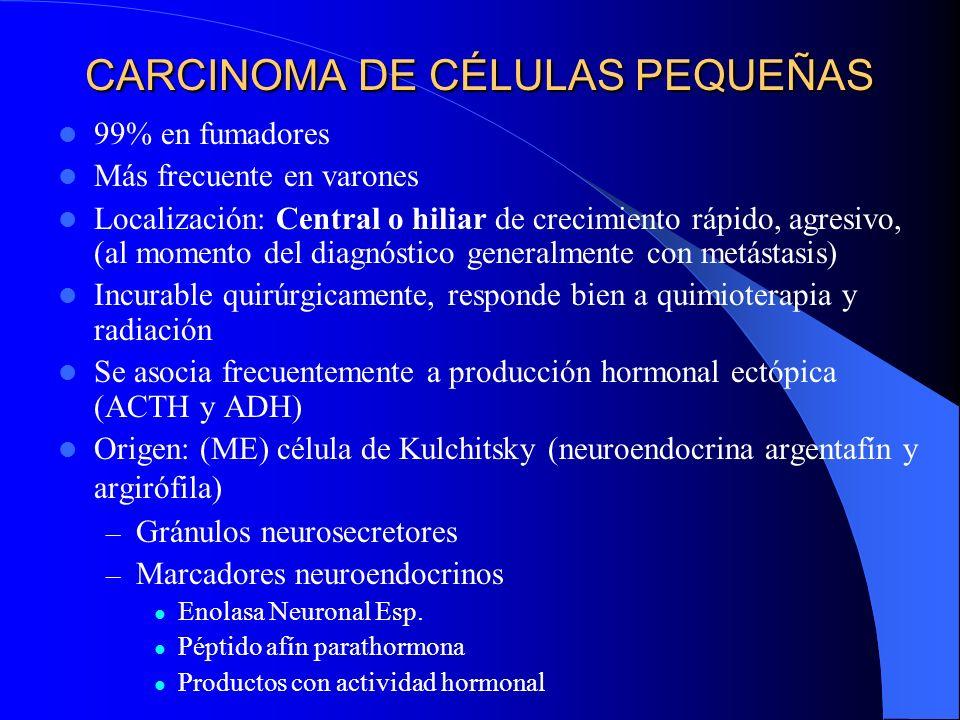 2) Ca. Bronquioloalveolar 1 - 9% de todos los Ca. pulmonares Frecuencia igual en ambos sexos Síntomas (tos, hemoptisis, dolor, ocasionalmente cuadro d