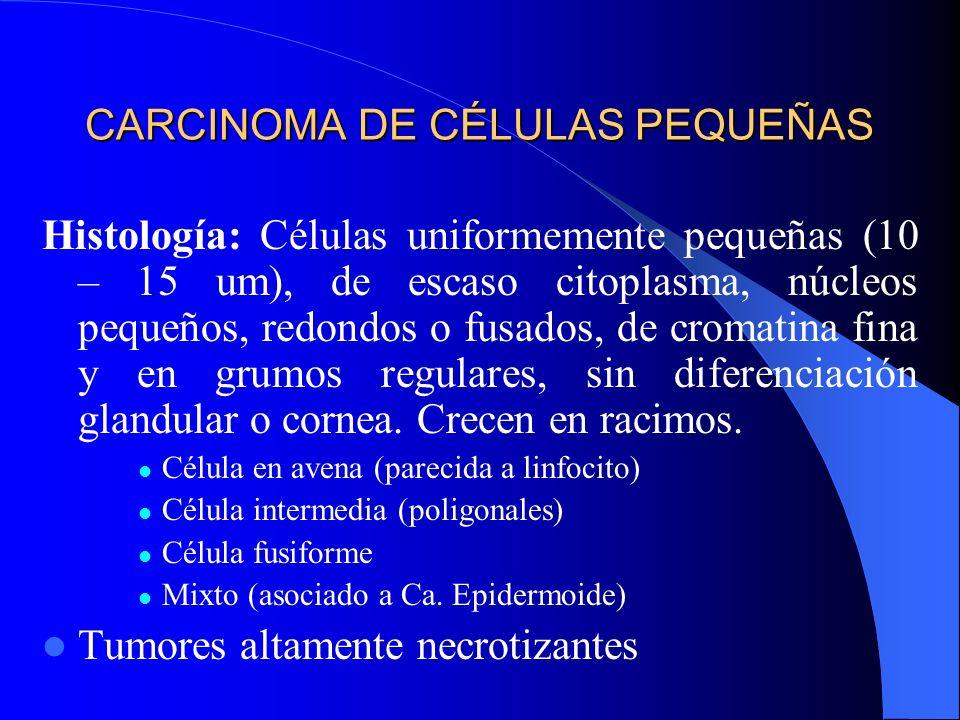 CARCINOMA DE CÉLULAS PEQUEÑAS 99% en fumadores Más frecuente en varones Localización: Central o hiliar de crecimiento rápido, agresivo, (al momento de
