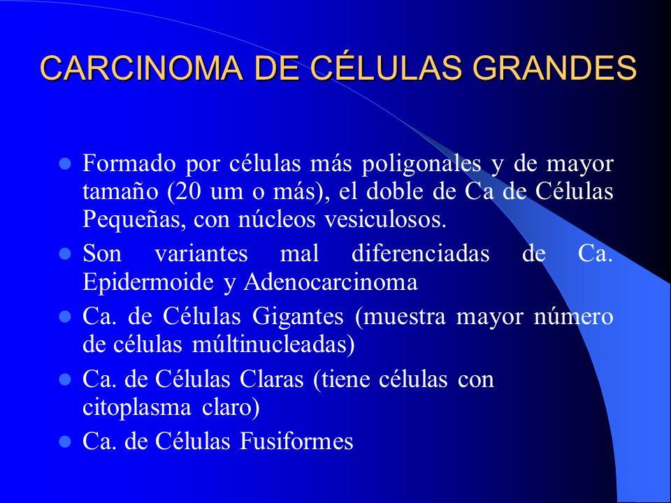 CARCINOMA DE CÉLULAS PEQUEÑAS Histología: Células uniformemente pequeñas (10 – 15 um), de escaso citoplasma, núcleos pequeños, redondos o fusados, de