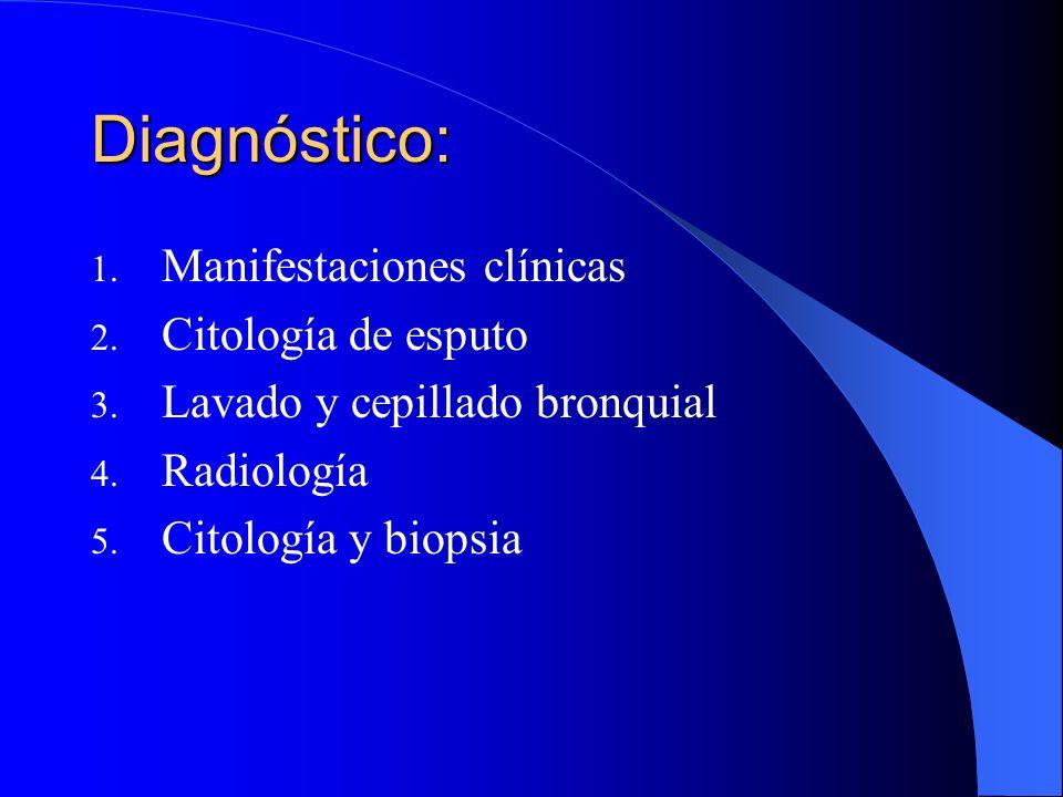 Evolución clínica: El Ca de pulmón es una neoplasia insidiosa y agresiva, que habitualmente se descubre en la sexta década y los pacientes llevan vari