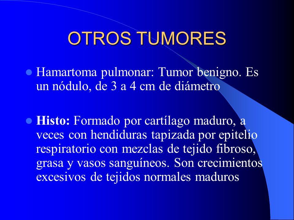 Carcinoide Bronquial Macro: masas polipoides en luz bronquial, cubierta por mucosa normal (ppal%. en bronquios principales) Histo: Formada por nidos,