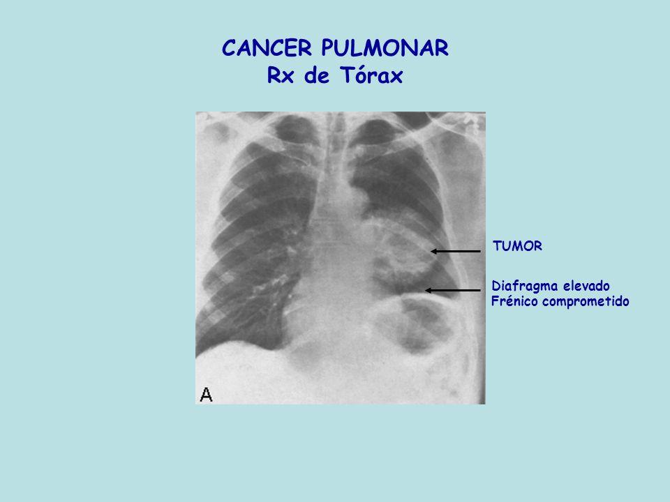 CANCER PULMONAR Rx de Tórax TUMOR Diafragma elevado Frénico comprometido