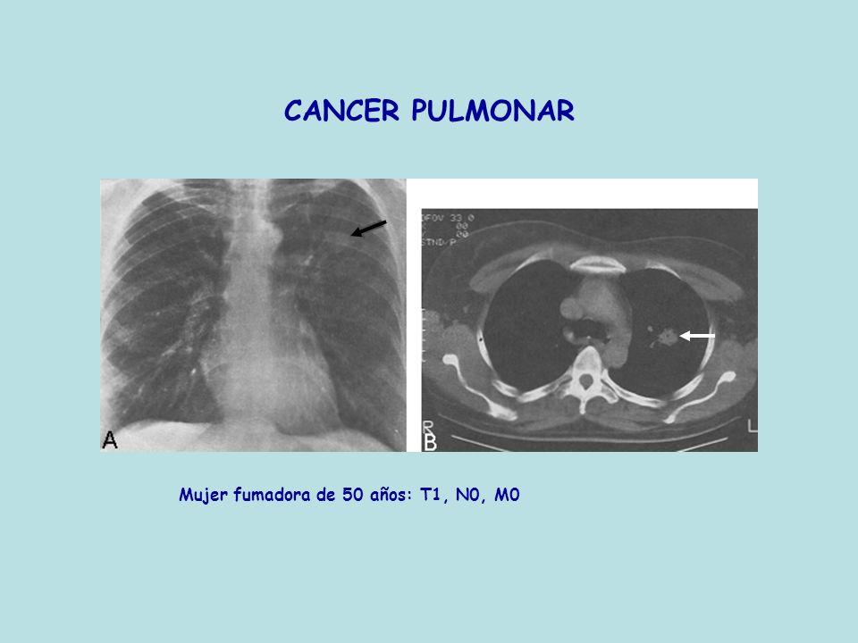 CANCER PULMONAR Mujer fumadora de 50 años: T1, N0, M0