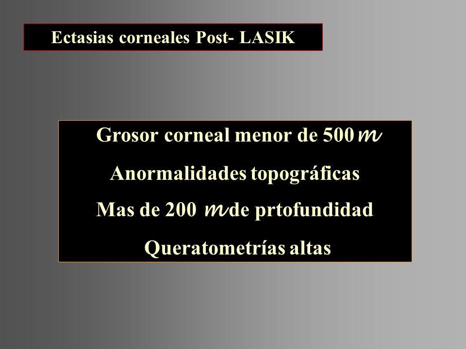 Grosor corneal menor de 500 m Anormalidades topográficas Mas de 200 m de prtofundidad Queratometrías altas Ectasias corneales Post- LASIK