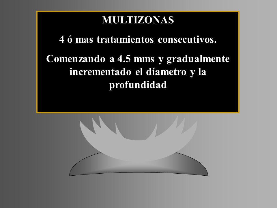MULTIZONAS 4 ó mas tratamientos consecutivos. Comenzando a 4.5 mms y gradualmente incrementado el díametro y la profundidad