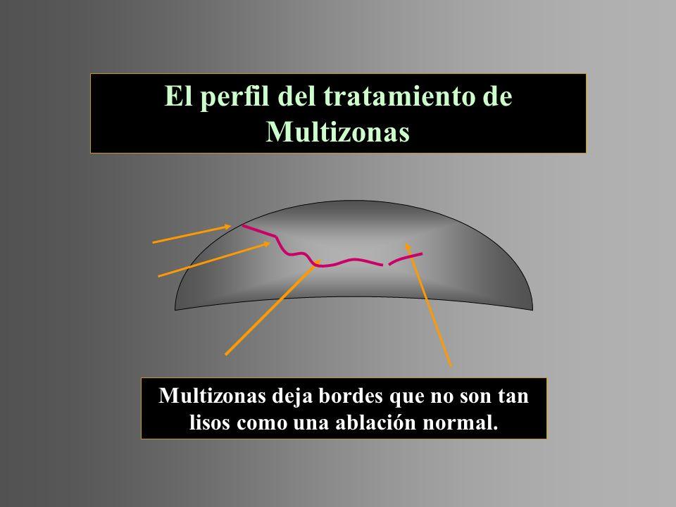 El perfil del tratamiento de Multizonas Multizonas deja bordes que no son tan lisos como una ablación normal.