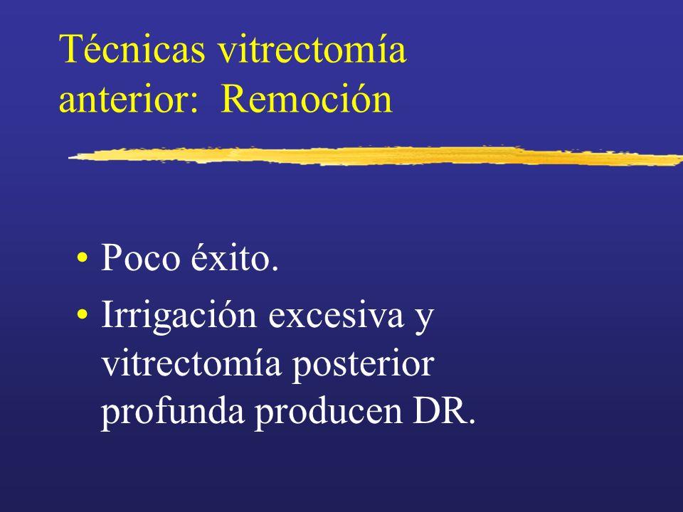 Técnicas vitrectomía anterior: Remoción Poco éxito. Irrigación excesiva y vitrectomía posterior profunda producen DR.