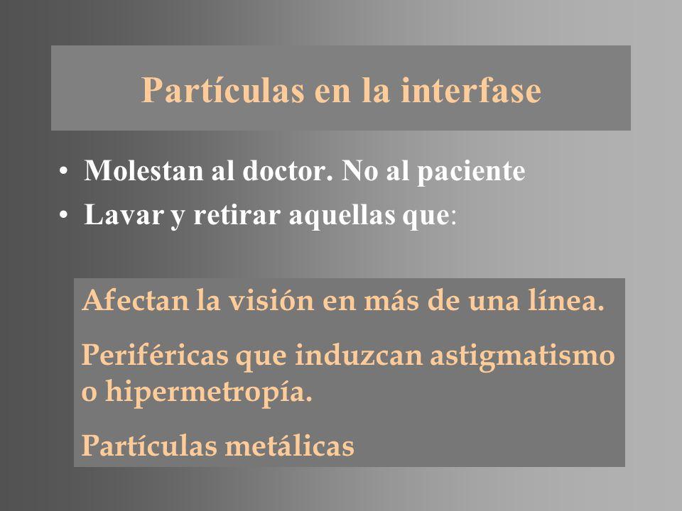 Partículas en la interfase Molestan al doctor. No al paciente Lavar y retirar aquellas que: Afectan la visión en más de una línea. Periféricas que ind