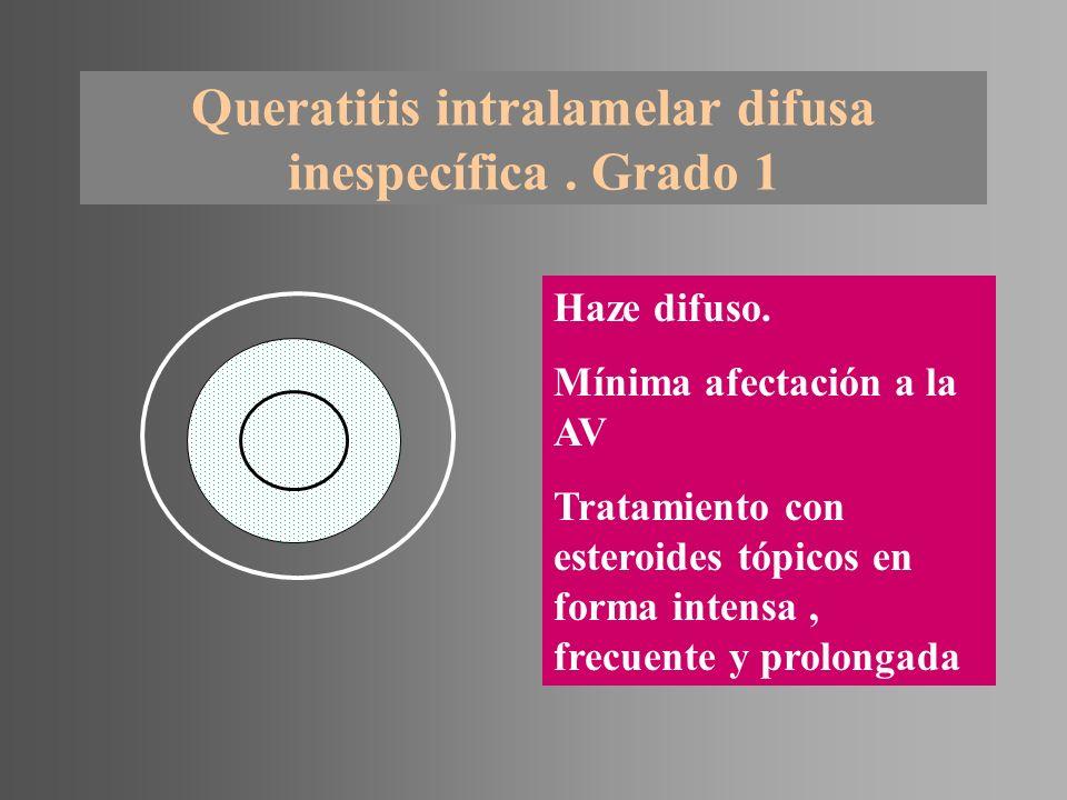 Queratitis intralamelar difusa inespecífica. Grado 1 Haze difuso. Mínima afectación a la AV Tratamiento con esteroides tópicos en forma intensa, frecu