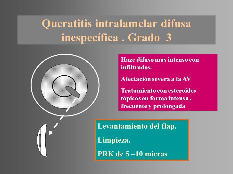 Queratitis intralamelar difusa inespecífica. Grado 3 Haze difuso mas intenso con infiltrados. Afectación severa a la AV Tratamiento con esteroides tóp
