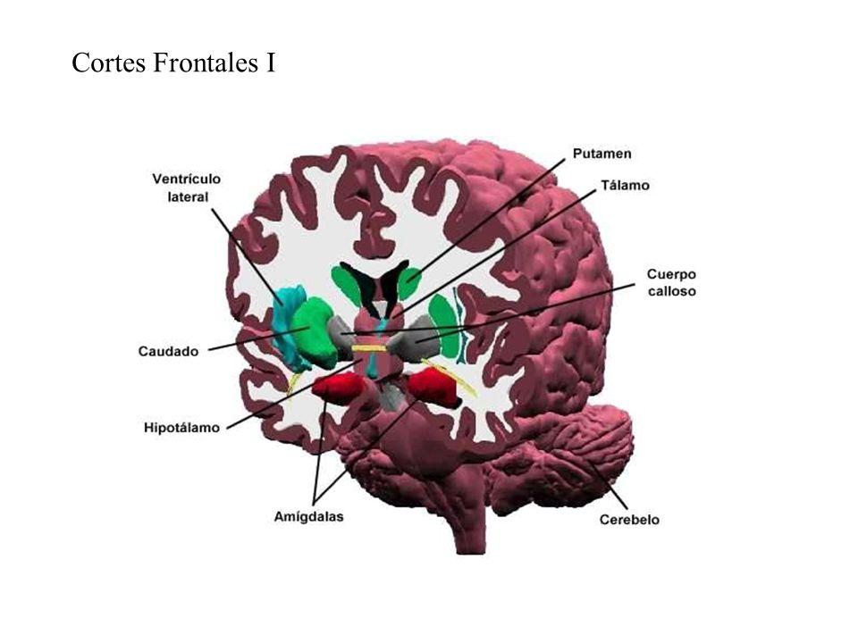 Cortes Frontales I