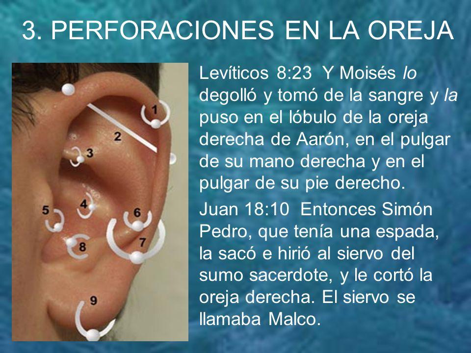 4.PERFORACION EN LAS MANOS 2o.