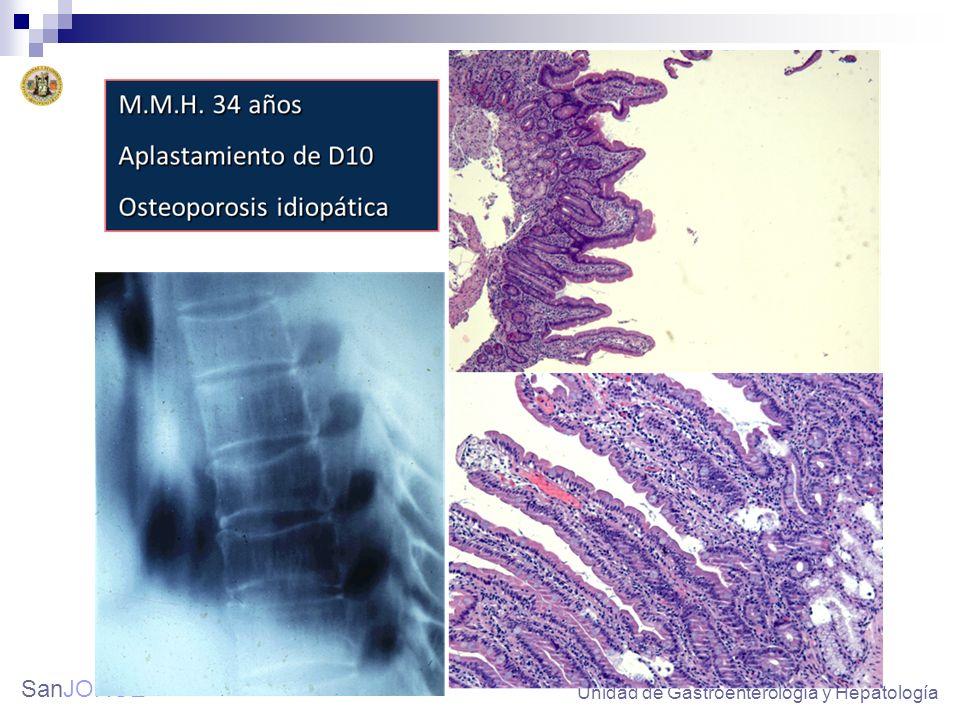 SanJORGE Atrofia grave de las vellosidades Unidad de Gastroenterología y Hepatología