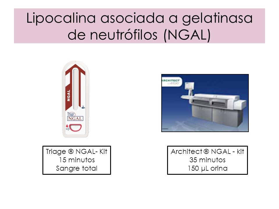 Lipocalina asociada a gelatinasa de neutrófilos (NGAL) Triage ® NGAL- Kit 15 minutos Sangre total Architect ® NGAL - kit 35 minutos 150 μL orina