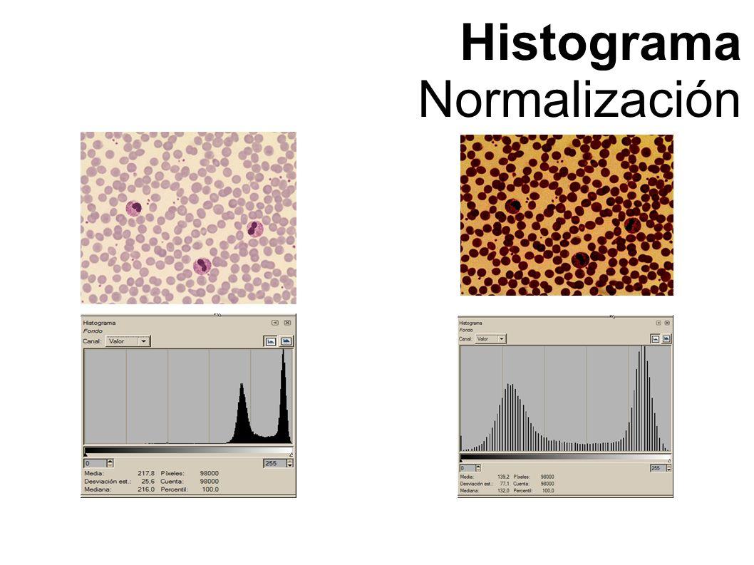 Histograma Normalización