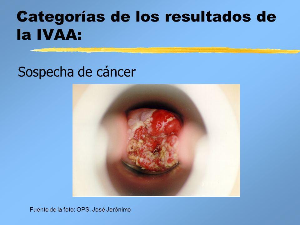 Categorías de los resultados de la IVAA: Sospecha de cáncer Fuente de la foto: OPS, José Jerónimo
