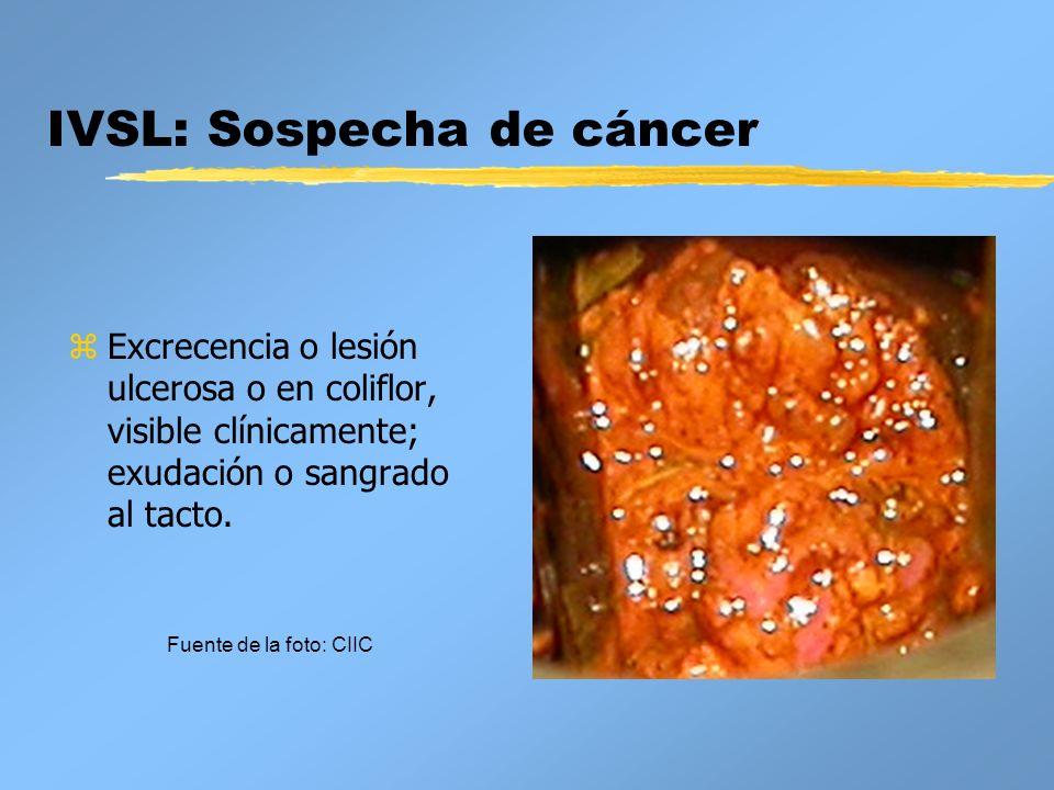 IVSL: Sospecha de cáncer z Excrecencia o lesión ulcerosa o en coliflor, visible clínicamente; exudación o sangrado al tacto. Fuente de la foto: CIIC