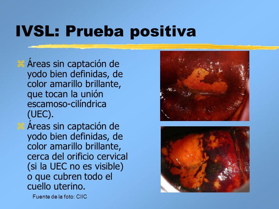 IVSL: Sospecha de cáncer z Excrecencia o lesión ulcerosa o en coliflor, visible clínicamente; exudación o sangrado al tacto.