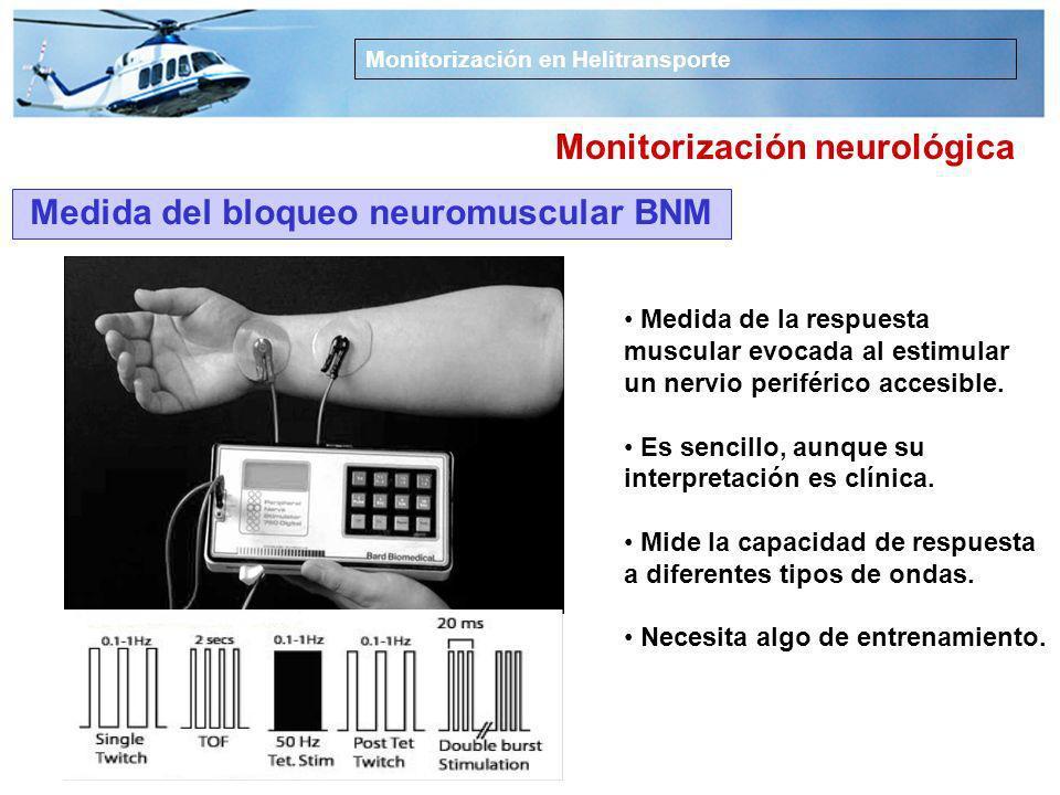 BIS: Análisis biespectral 100 0 40 80 60 20 Despierto, memoria intacta Sedación Anestesia general Hipnosis profunda Aumento de las salvas de supresión