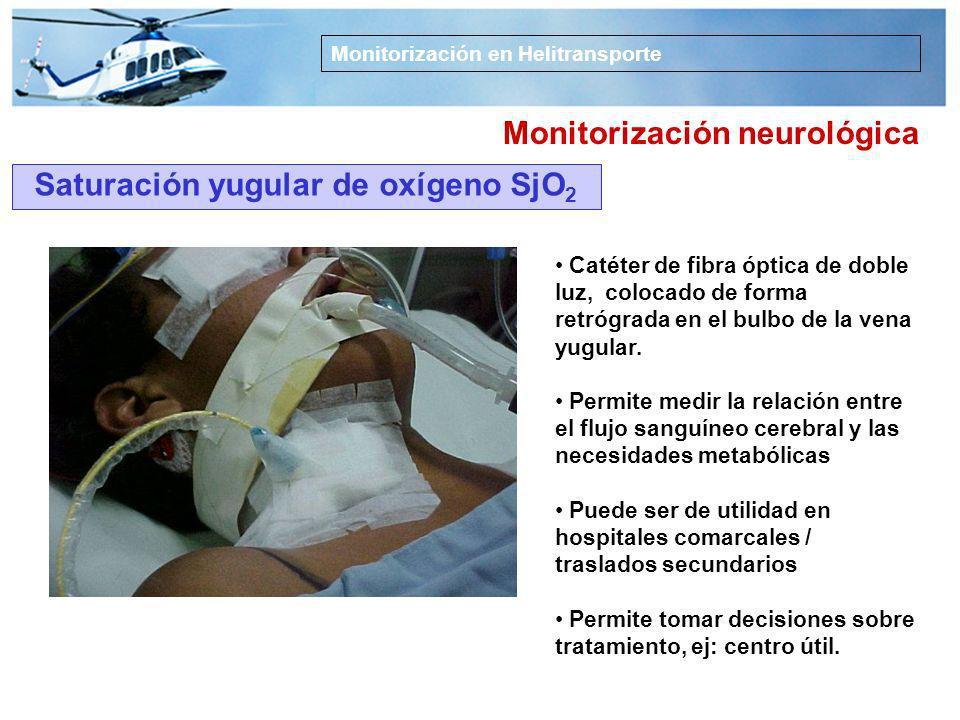 Monitorización en Helitransporte Monitorización neurológica Medida del bloqueo neuromuscular BNM Medida de la respuesta muscular evocada al estimular