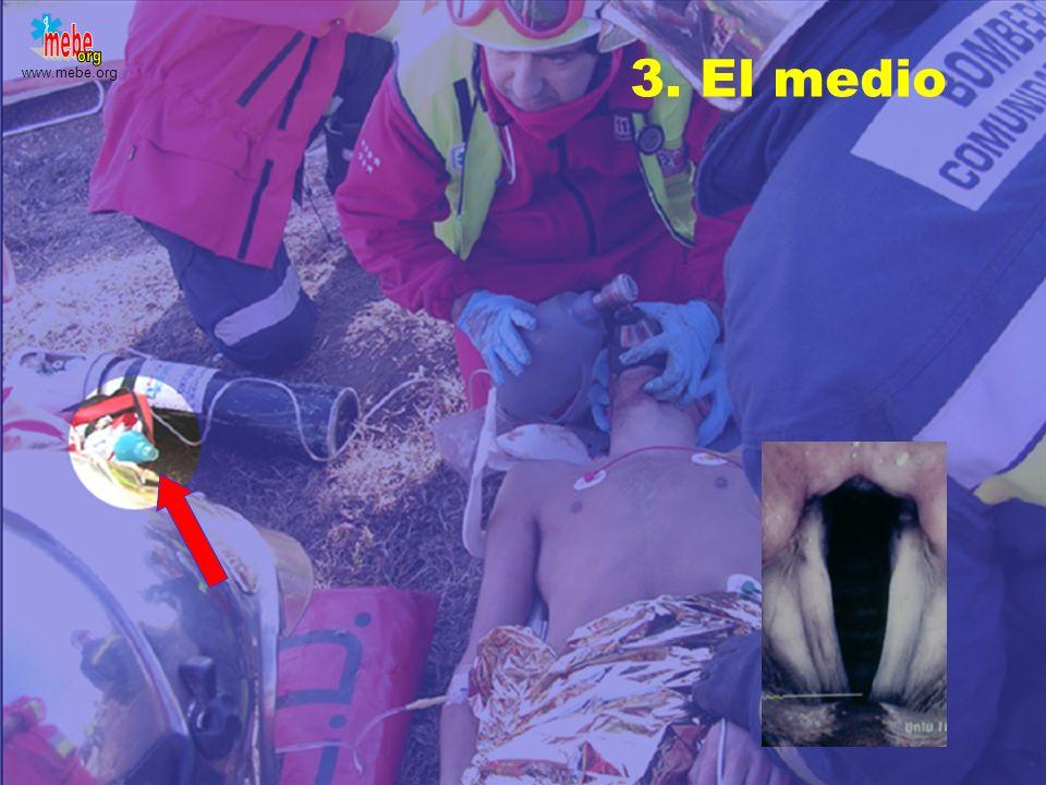 www.mebe.org Comportamiento TráqueaEsófago a 0 0d FN VP VN FP Esófago Falsos positivos La técnica señala como buena una intubación esofágica. No recon