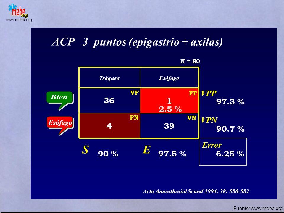 www.mebe.org TráqueaEsófago 40 34 06 Condensación vapor de agua en espiración Error S E VPP VPN 100 % 15 % 57.5 % 54 % 100 % Anaesthesia 1989; 44: 984