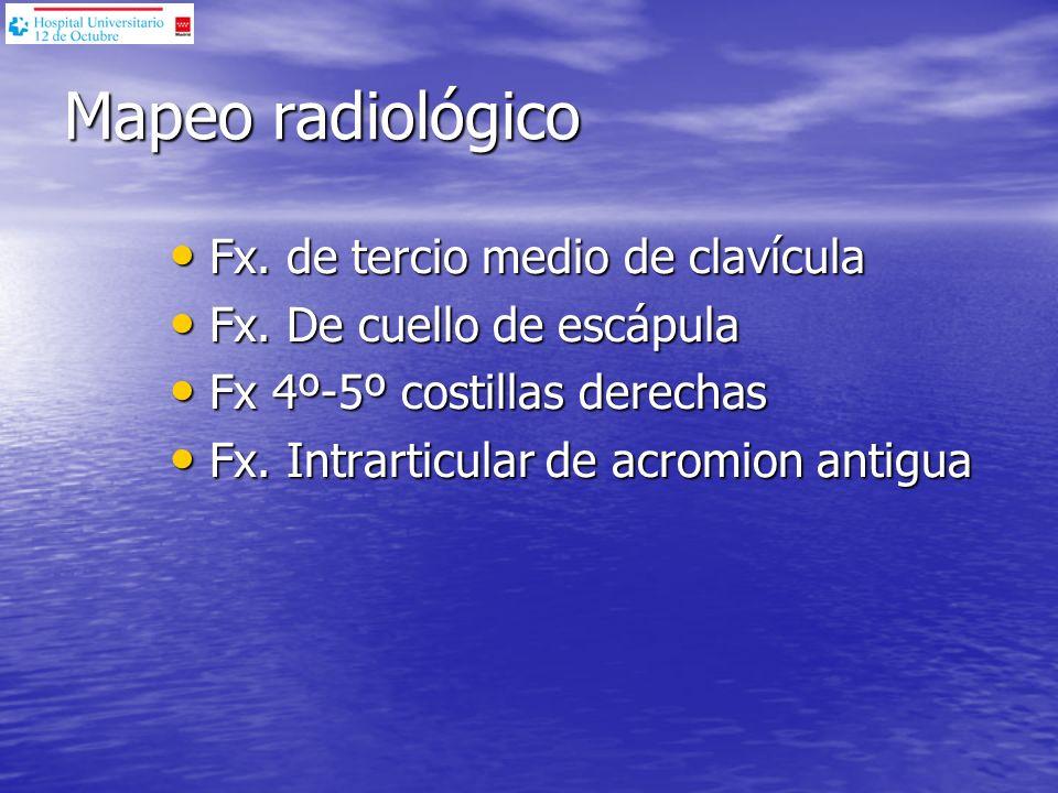 Mapeo radiológico Fx. de tercio medio de clavícula Fx. de tercio medio de clavícula Fx. De cuello de escápula Fx. De cuello de escápula Fx 4º-5º costi