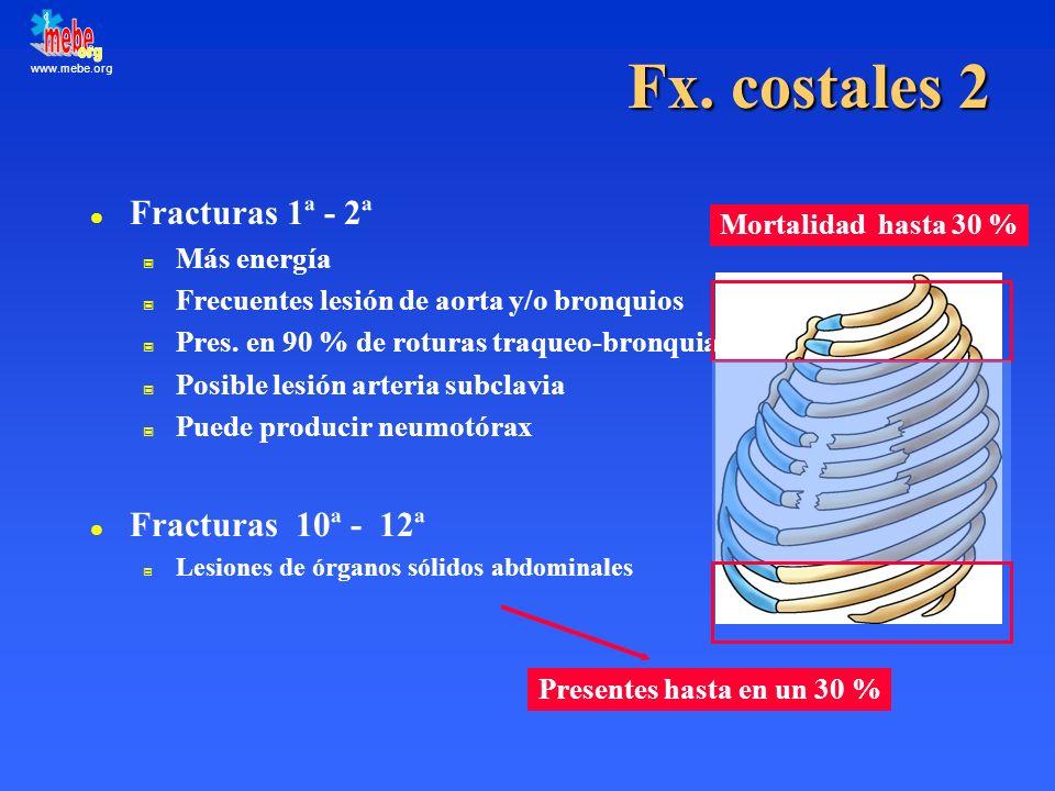 www.mebe.org Fx. costales 2 l Fracturas 1ª - 2ª Más energía Frecuentes lesión de aorta y/o bronquios Pres. en 90 % de roturas traqueo-bronquiales Posi