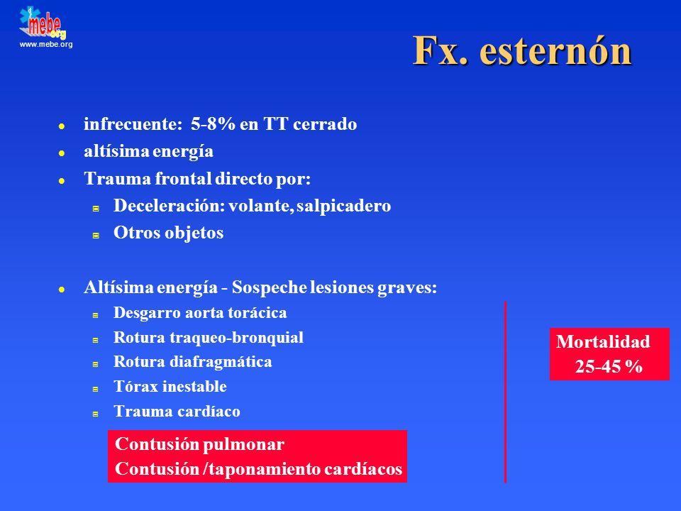 www.mebe.org Fx. esternón l infrecuente: 5-8% en TT cerrado l altísima energía l Trauma frontal directo por: Deceleración: volante, salpicadero Otros