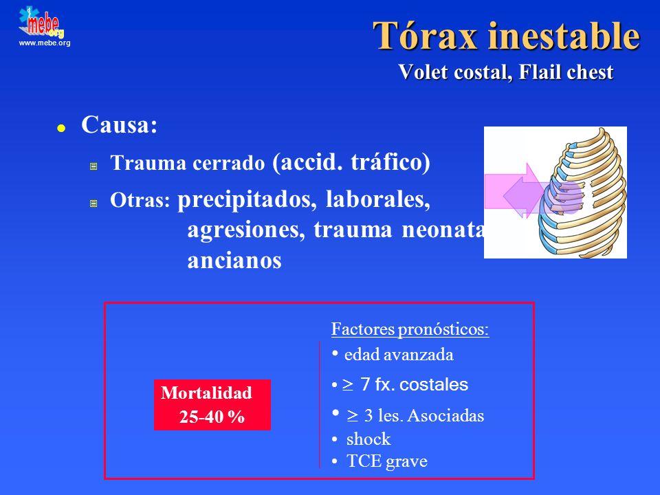 www.mebe.org Tórax inestable Volet costal, Flail chest l Causa: Trauma cerrado (accid. tráfico) Otras: precipitados, laborales, agresiones, trauma neo