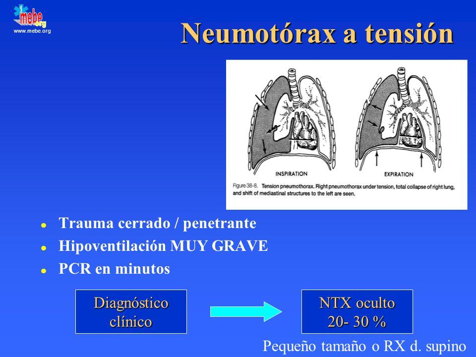 www.mebe.org Neumotórax a tensión l Trauma cerrado / penetrante l Hipoventilación MUY GRAVE l PCR en minutos Diagnósticoclínico NTX oculto 20- 30 % Pe