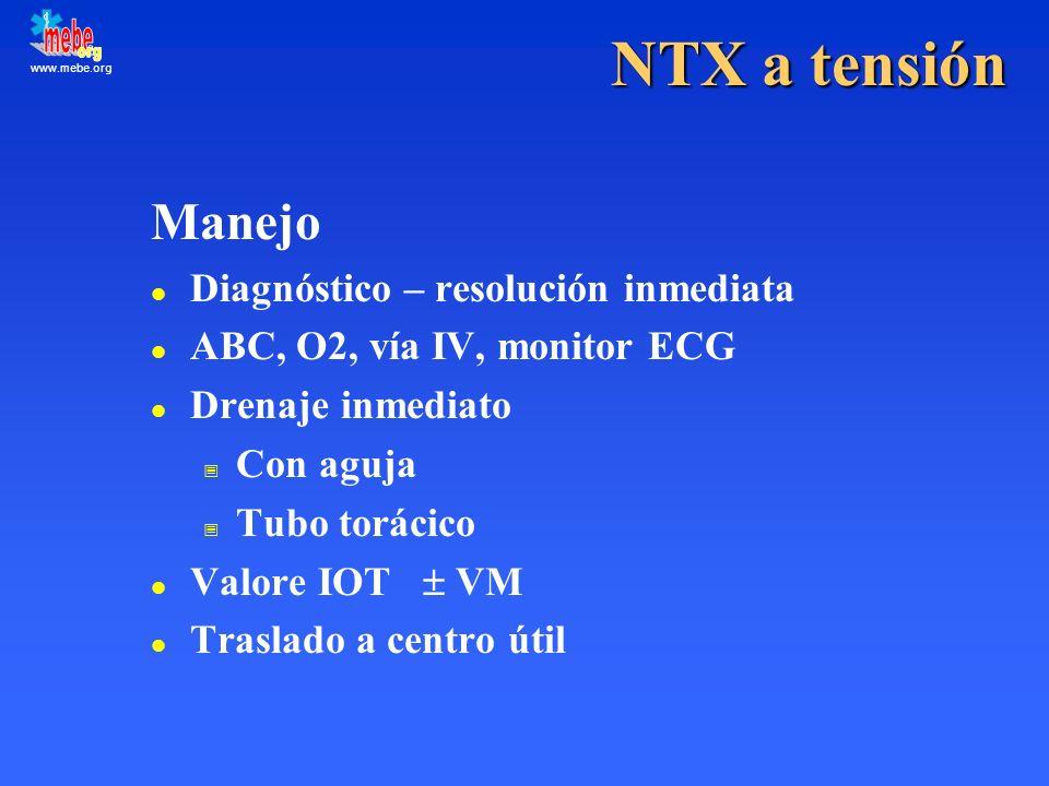 www.mebe.org NTX a tensión Manejo l Diagnóstico – resolución inmediata l ABC, O2, vía IV, monitor ECG l Drenaje inmediato Con aguja Tubo torácico Valo