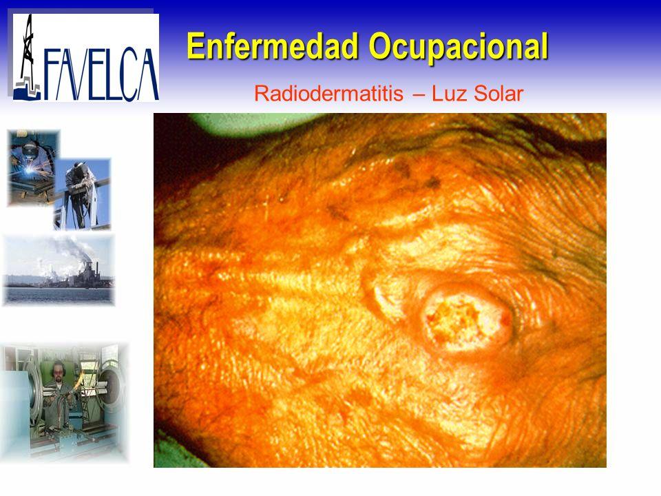 Enfermedad Ocupacional Radiodermatitis – Luz Solar