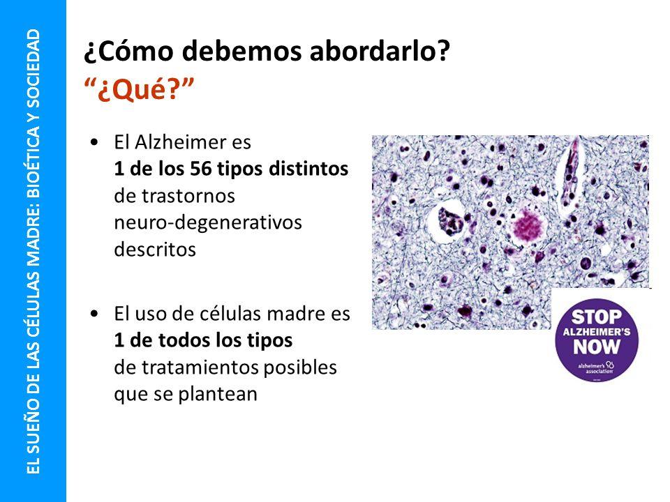El Alzheimer es 1 de los 56 tipos distintos de trastornos neuro-degenerativos descritos El uso de células madre es 1 de todos los tipos de tratamiento