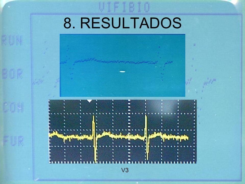 8. RESULTADOS V3