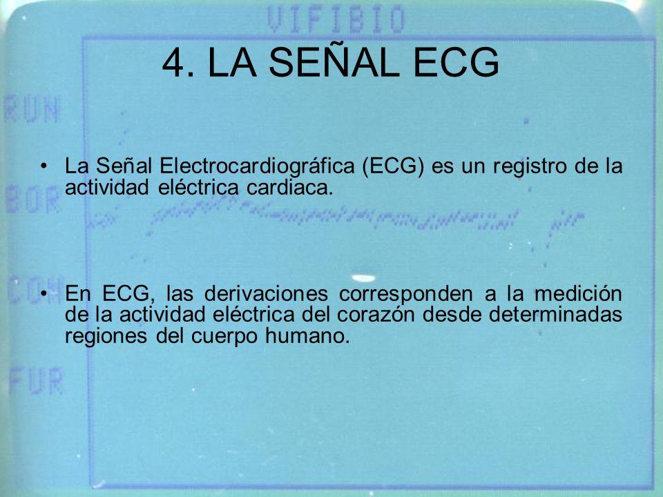 4. LA SEÑAL ECG La Señal Electrocardiográfica (ECG) es un registro de la actividad eléctrica cardiaca. En ECG, las derivaciones corresponden a la medi
